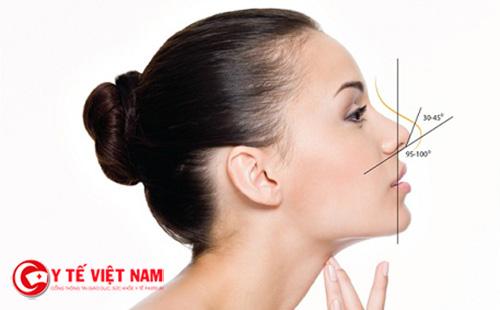 Nâng mũi an toàn cần chú ý điều gì?