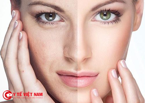 Căng da mặt nội soi giúp trẻ hóa da hiệu quả