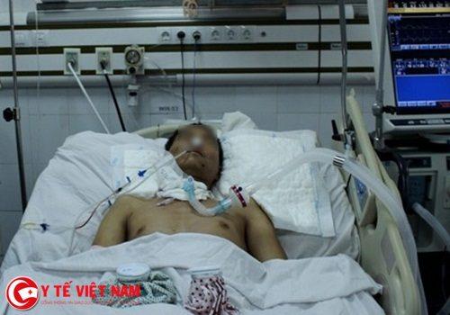 Sốc: Nam bệnh nhân vỡ thực quản, suýt mất mạng vì uống rượu quá đà
