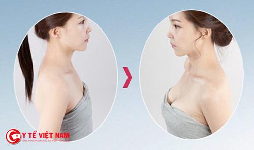 Nâng ngực nội soi có an toàn không?