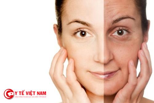 Làn da lão hóa do thiếu hụt collagen cần thiết