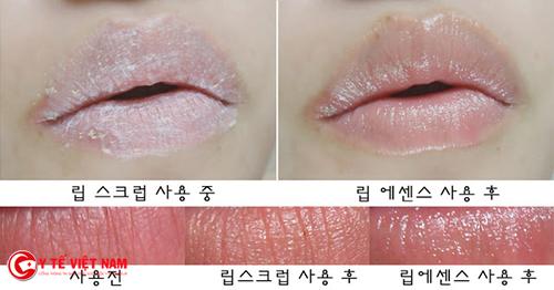 Sản phẩm tẩy da chết cho môi rất được tin dùng