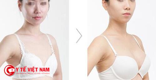 Nâng ngực nội soi để cải thiện vòng một