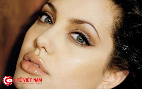 Nâng mũi Pureform cho dáng mũi đẹp tự nhiên