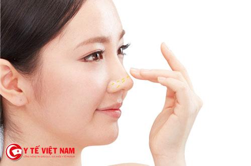 Nâng mũi Pureform giúp cho dáng mũi cao thon gọn