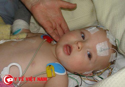 3 trẻ nhập viện vì xuất huyết não do thiếu vitamin K chỉ mới hơn 1 tháng tuổi
