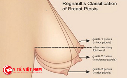 Nâng ngực chảy xệ nội soi cải thiện vòng một