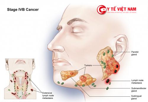 Những dấu hiệu và triệu chứng rất dễ nhận biết của u tuyến nước bọt.