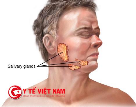 Các khối u tuyến nước bọt - tuyến mang tai, tuyến dưới hàm và tuyến dưới lưỡi