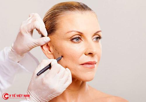 Căng da mặt nội soi giúp cải thiện da lão hóa