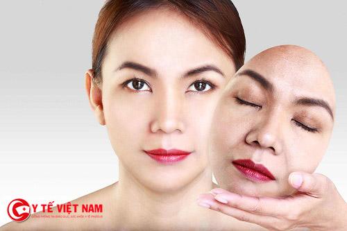 Trẻ hóa da với căng da mặt nội soi