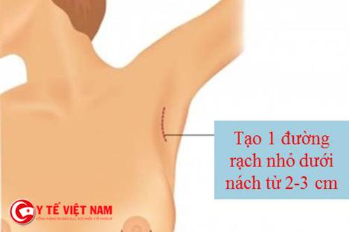 Nâng ngực nội soi đảm bảo an toàn cao