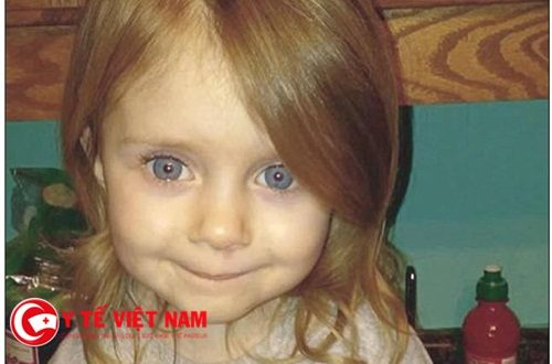 Kỳ lạ: Cô bé 3 tuổi chuẩn bị rút ống thở thì sống lại kỳ diệu