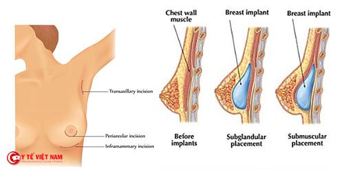 Các phương pháp nâng ngực có gì khác nhau?