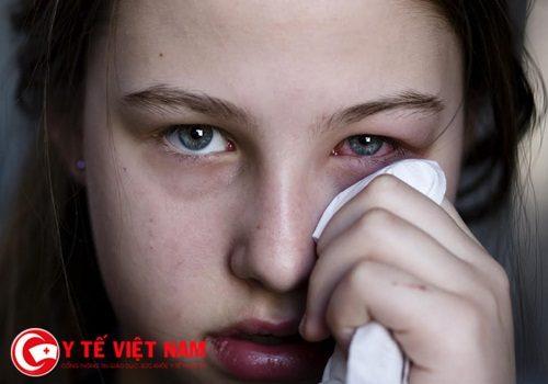 Nguyên nhân và triệu chứng gây bệnh đau mắt đỏ