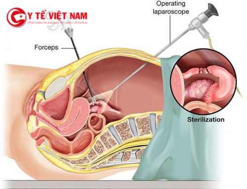 Thắt ống dẫn trứng sau sinh