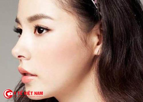 Nâng mũi Pureform giúp bạn gái có dáng mũi cao đẹp tự nhiên