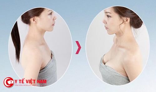 Nâng ngực nội soi cho bầu ngực hoàn hảo