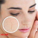 Sử dụng kem chống nắng đúng cách giúp ngăn ngừa lão hóa da