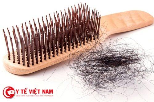 Chuyên giá khuyên bạn nên đi khám nếu bị rụng tóc?