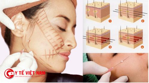 Căng da mặt không phẫu thuật có tốt không
