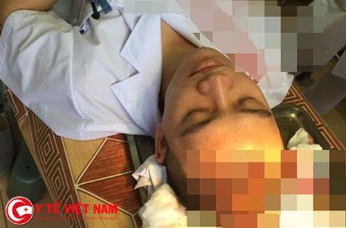 BS Lê Quang Dương bị hành hung tại BV Đa khoa Thạch Thất (Hà Nội) vào tháng 4/2017.