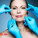 Căng da mặt nội soi giúp phụ nữ lấy lại nhan sắc