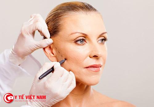 Căng da mặt nội soi giúp phái đẹp sở hữu làn da căng mịn