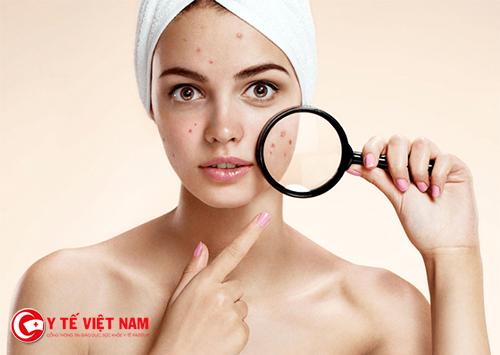 Điều trị mụn cho da dầu cần phải kiên trì
