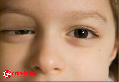 Mí mắt bị sụp khiến chị em kém tự tin