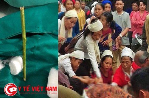 Thai phụ 4 tháng tử vong vì nhờ thầy lang phá thai bằng que nứa