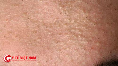 Điều trị mụn ẩn dưới da cần có sự kiên trì