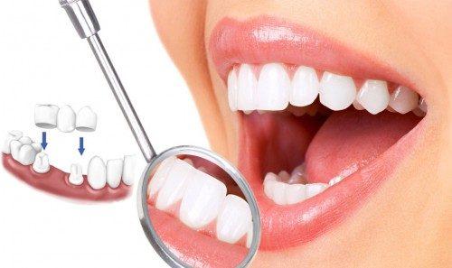 Điểm mặt 3 biến chứng nguy hiểm khi bọc răng sứ
