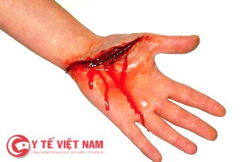 Nguyên nhân gây ra tình trạng sốc mất máu