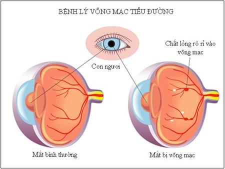 Biến chứng trên mắt người bệnh đái tháo đường