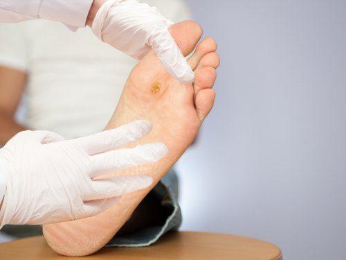 Biến chứng trên bàn chân