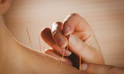 Châm cứu bấm huyệt giúp điều trị các cơn đau mãn tính