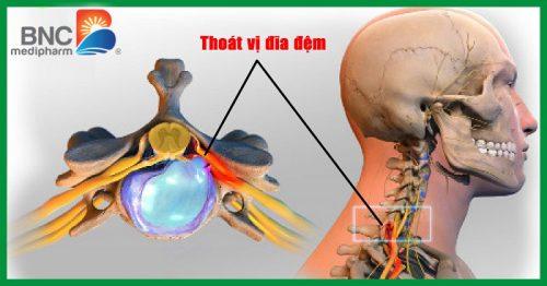 Thoát vị đĩa đệm cột sống cổ chèn ép rễ thần kinh gây đau lan xuống tay.