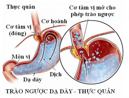 Trào ngược dạ dày - thực quản có nguy cơ gây co thắt thực quản.