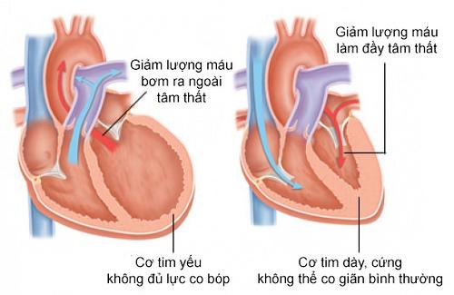 Những nguyên nhân gây ra bệnh suy tim