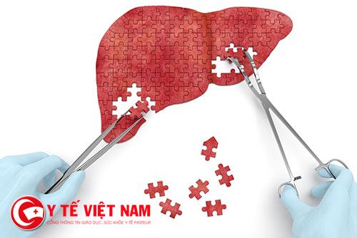 5 dấu hiệu đầu tiên cảnh báo gan bạn đang chứa rất nhiều độc tố