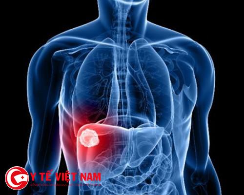Bệnh nhân mắc bệnh viêm gan B