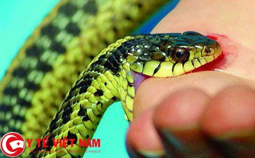 Cách sơ cứu khi bị rắn cắn nhanh nhất và chuẩn nhất