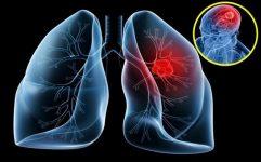 """Những dấu hiệu cảnh báo bệnh ung thư phổi đang """"rình rập"""""""