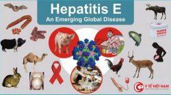 Viêm gan E – căn bệnh dễ gặp trong mùa mưa lũ