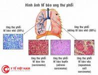 Ung thư phổi do phơi nhiễm
