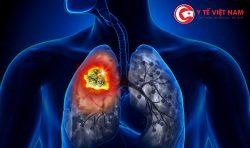 Ô nhiễm không khí là nguyên nhân gây ra ung thư phổi