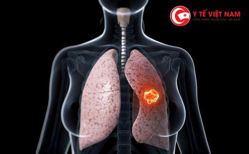 Dấu hiệu cảnh báo bệnh ung thư phổi