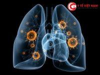 Tuổi thọ của người ung thư phổi phụt thuộc vào mức độ nặng nhẹ của bệnh