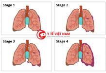 Chế độ chăm sóc sức khỏe cho bệnh nhân ung thư phổi vô cùng quan trọng